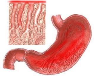http://www.meddir.net/imagenes/tumores%20gastricos/gastritis.jpg